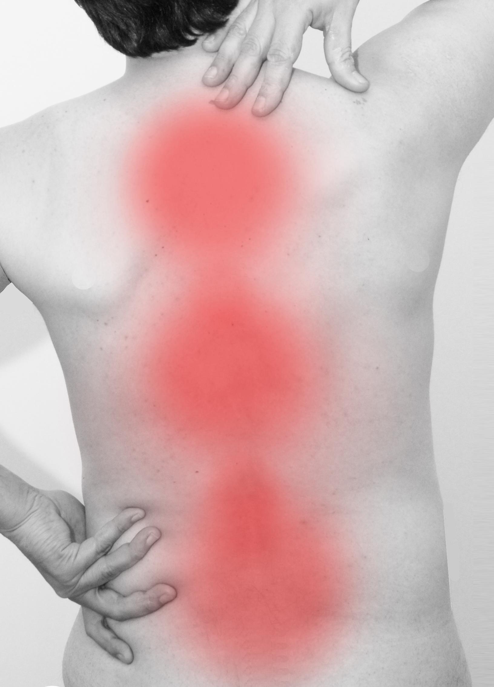 il mal di schiena